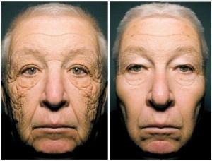 voznik sončenje staranje kože